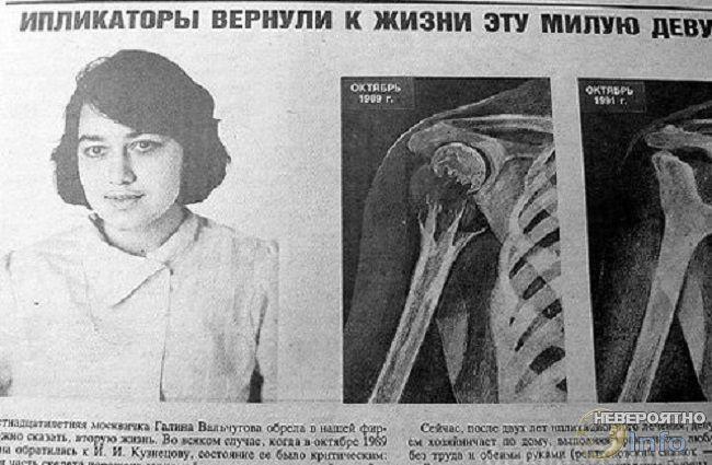 Ипликатор Кузнецова: как лечит и калечит советская рефлексотерапия